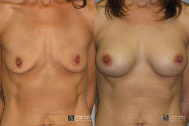 Cosmetic Surgery and Laser Center of El Paso image 2