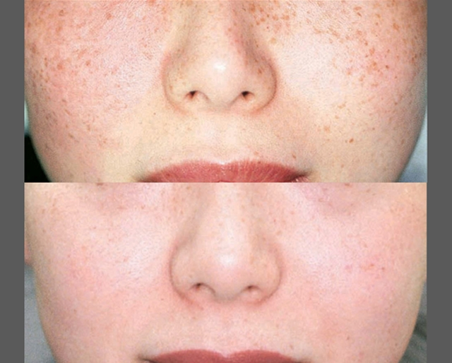 Skin Care and Laser Physicians of Beverly Hills image 9
