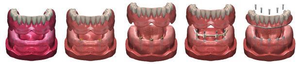 Groupe de Denturologistes Arbour Inc à Dollard-Des-Ormeaux