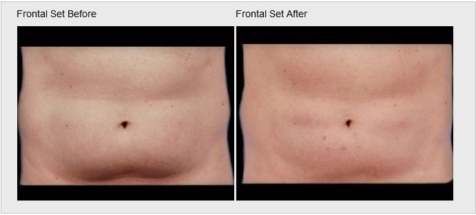 Skin Care and Laser Physicians of Beverly Hills image 12
