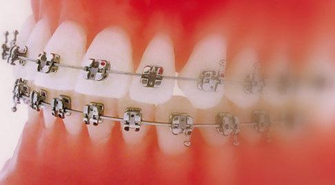 Dr Robert Ledoux Orthodontiste à Saint-Hubert