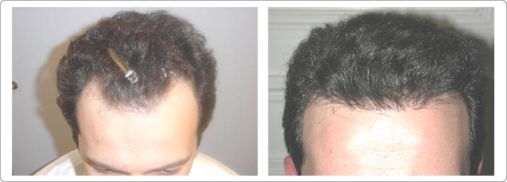 Hair Transplant Center NYC image 5