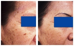 Cosmetic Laser and Beauty Spa image 6