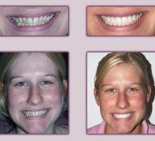 Lehigh Valley Smile Designs - Michael A. Petrillo DMD, PC image 6