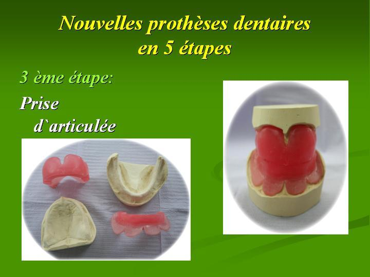 Choquette Michel Denturologiste à Saint-Hubert