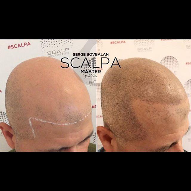 Scalp-Aesthetics Dearborn image 2