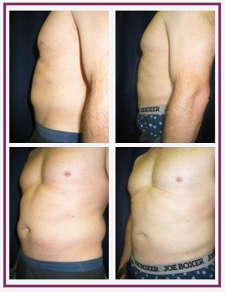 Nashua Plastic Surgery: George P. Chatson, M.D. image 6