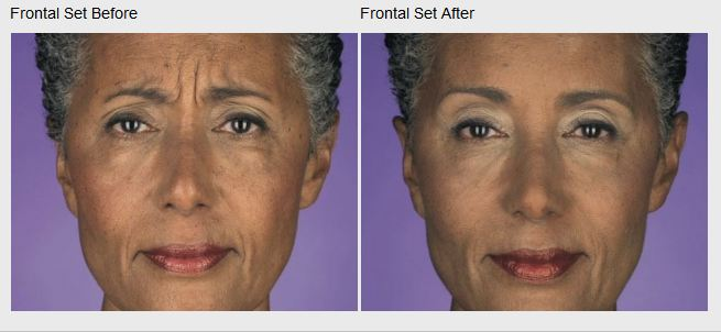 Skin Care and Laser Physicians of Beverly Hills image 16