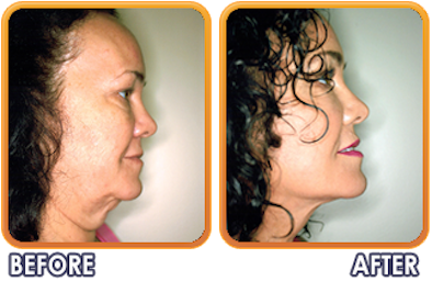 Palm Beach Plastic And Cosmetic Surgery image 4