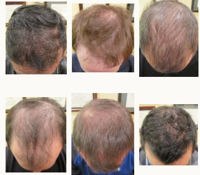 Chicago Hair Institute image 7
