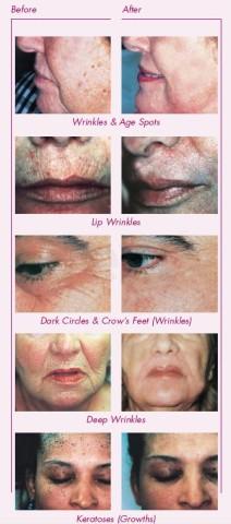 Wrinkles: Laser Skin Resurfacing Before & After, , Cosmetic Dermatologist