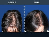 After using laser treatments and HLCC products, this patient had tremendous success in growing back her hair and stopping hair loss.