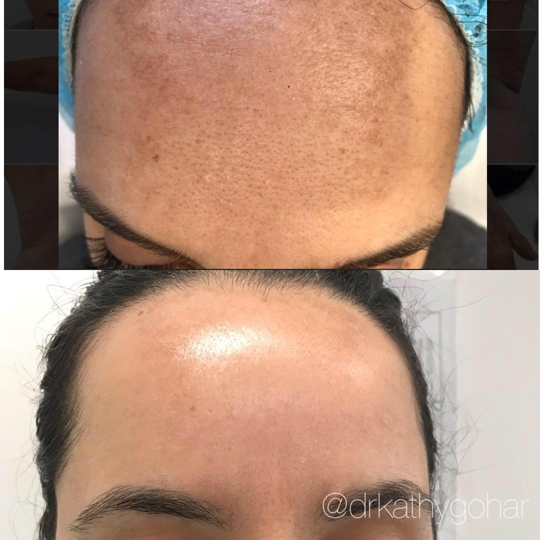 Beverly Hills Cosmetic & Laser Center: Kathy Gohar, M.D. image 6