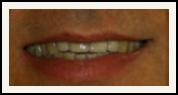 Darshan P. Patel, DDS, DPh, PLLC Esthetique Dental image 1