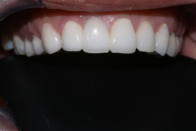 Murrieta Smiles Dentistry image 4