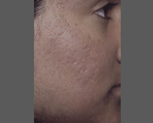 Skin Care and Laser Physicians of Beverly Hills image 8