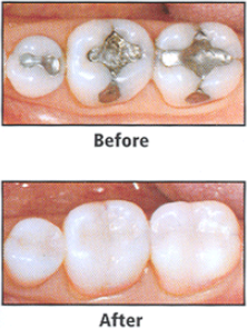 Complete Family Dentistry - R. Daron Sheline DDS image 6