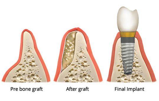 Implant Dental image 3