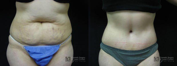 Cosmetic Surgery and Laser Center of El Paso image 10