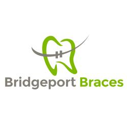 Bridgeport Braces