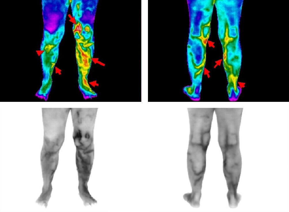 CT Thermography image 3