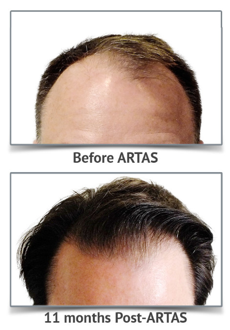 Vinings Hair Restoration Center image 2