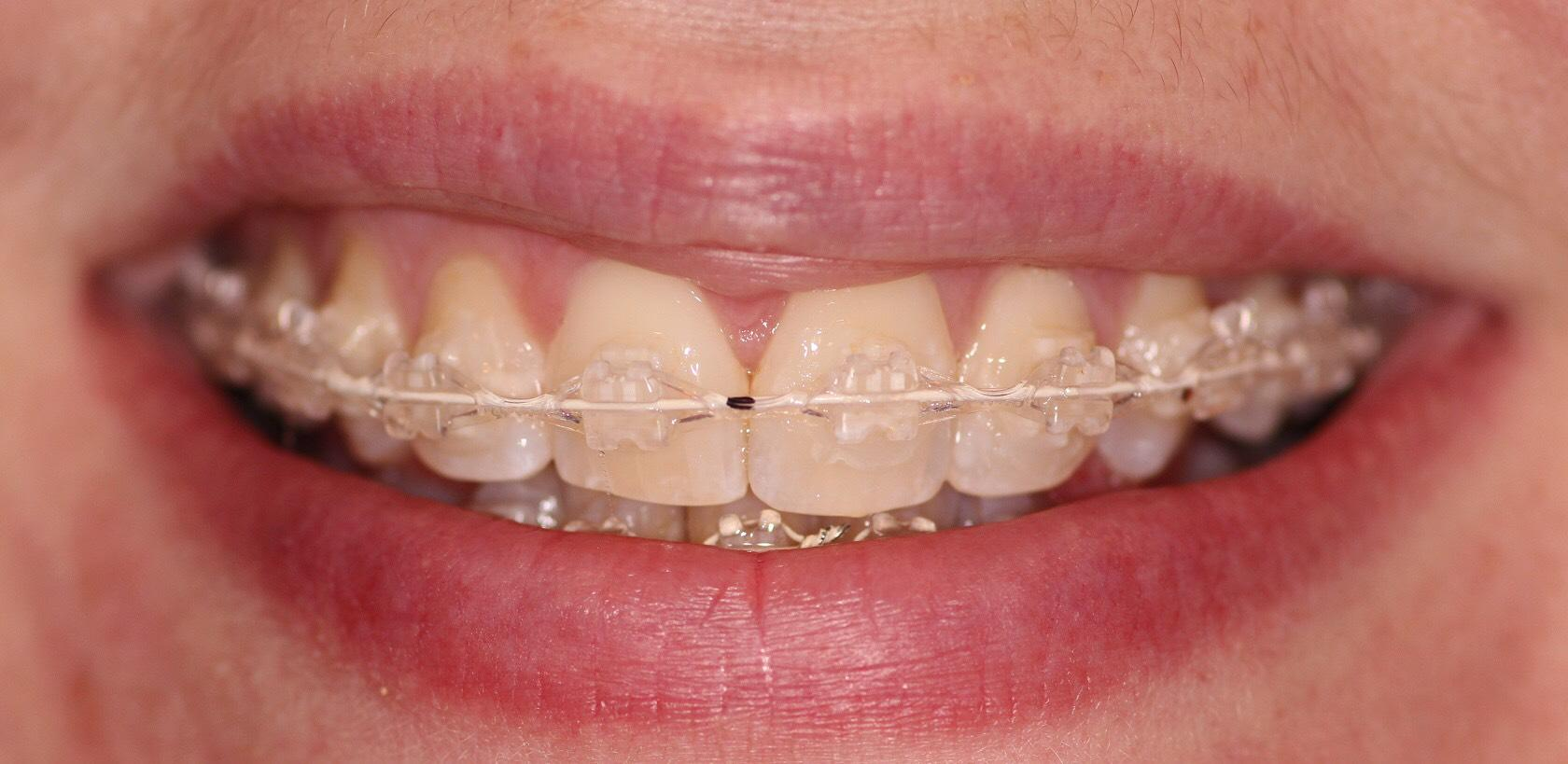 Lake Guntersville Dentistry image 0