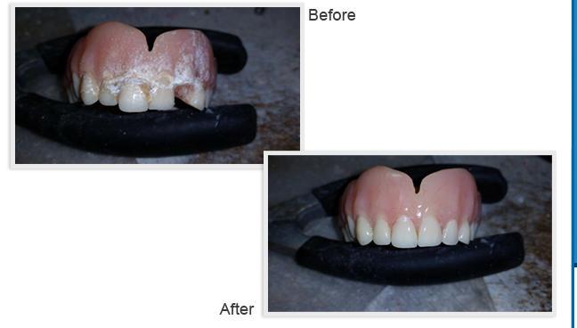 Depot Dental Lab Inc image 2