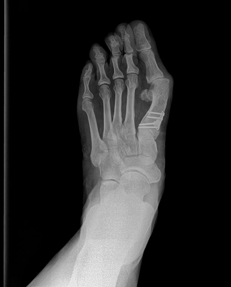 Elite Foot & Ankle Specialists image 2