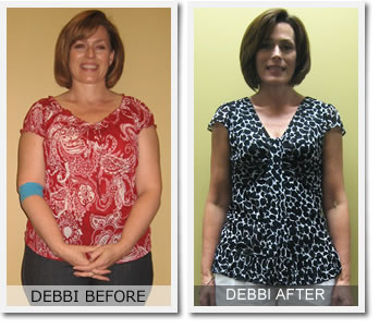 Scottsdale Weight Loss image 1