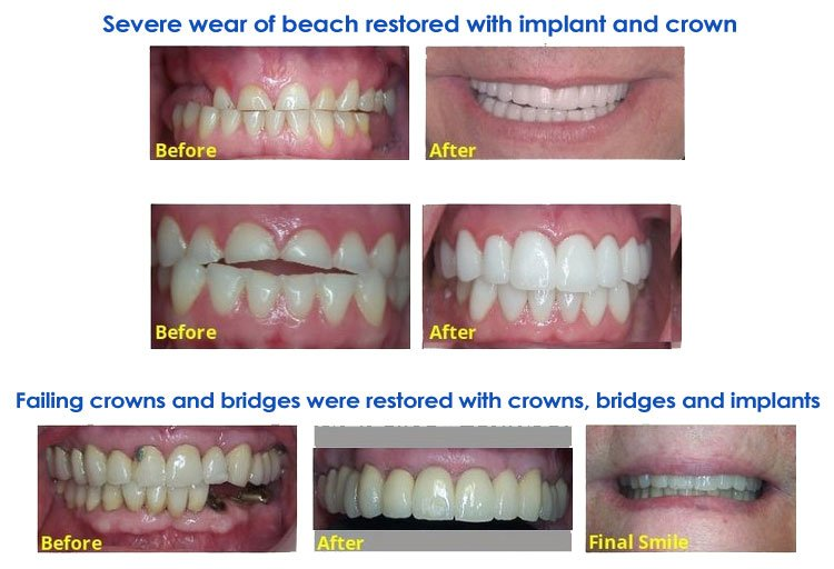 Newnan Dental Care Center image 3
