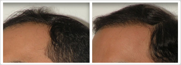Hair Transplant Center NYC image 4