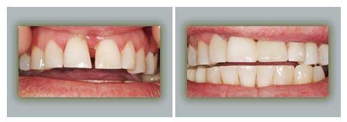 Lake Forest Dental Health Care image 5