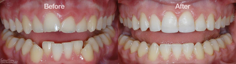 ABC 123 Dental - Fort Worth image 6