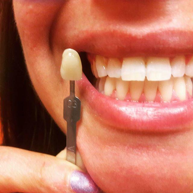 Radiant White Smiles Of Austin Cosmetic Teeth Whitening image 6