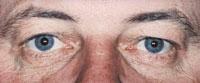 Eye Clinic Of Racine, Ltd image 7