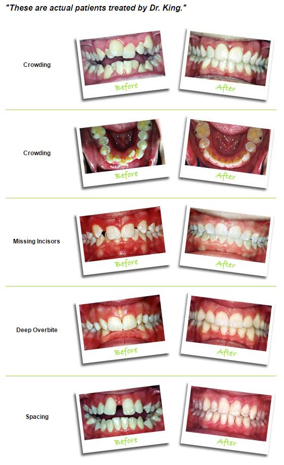 King Orthodontics image 2