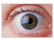 Cataract and Laser Eye Institute image 2