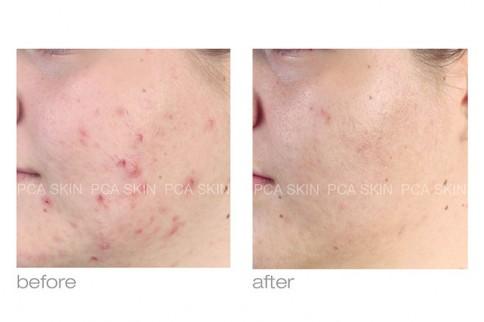 Skin Smart image 0