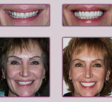 Lehigh Valley Smile Designs - Michael A. Petrillo DMD, PC image 8