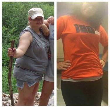 dr steve sorbera weight loss program