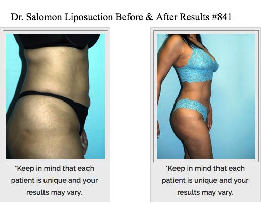 Dr. Jhonny A Salomon Plastic Surgery & Med Spa image 4