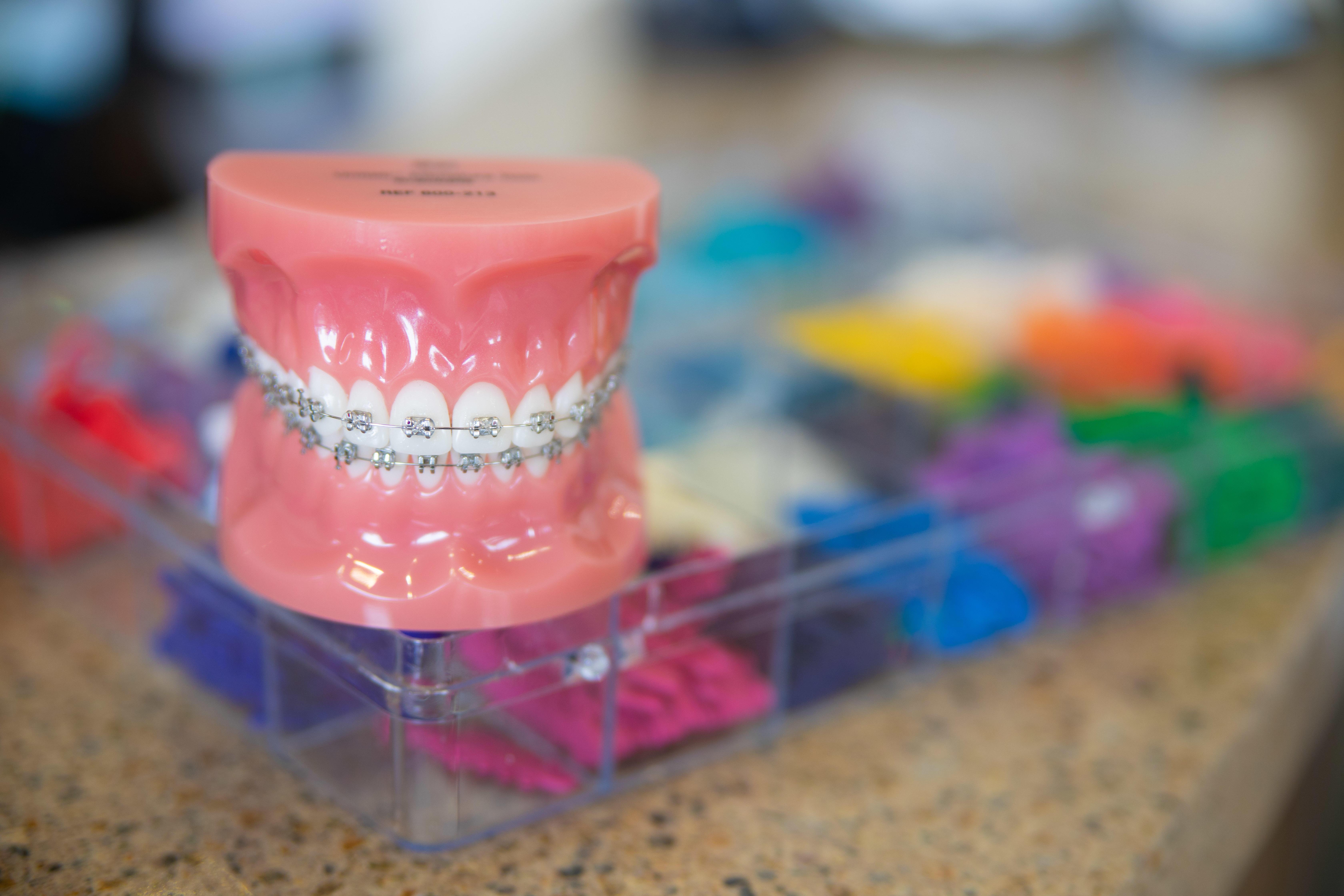Orthodontics of El Segundo image 8