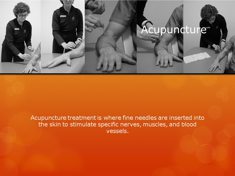 Human Performance Centre in Saint John: Acupuncture treatment is where fine needles are inserted into the skin to stimulate specific nerves, muscles, and blood vessels.