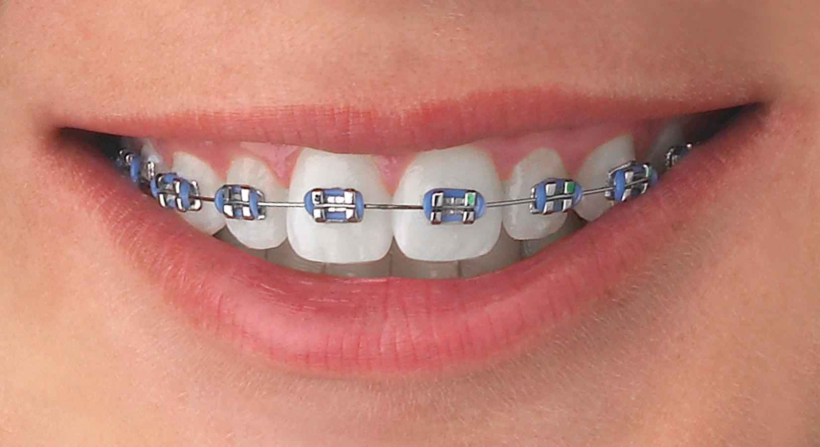 Mack and Hansen Orthodontics image 8