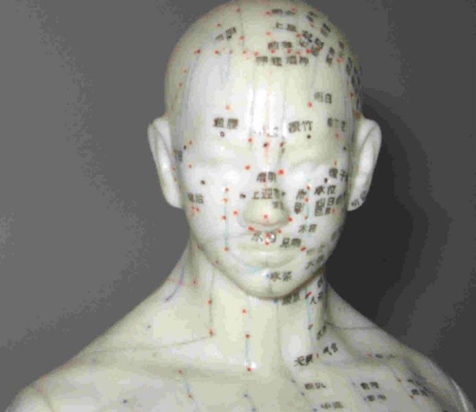 A 1 Clinique Chinoise D'Acupuncture Massothérapie et Herbologie De Montréal à Montréal: acupuncture model