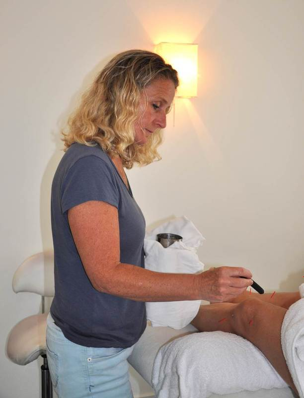 Beekhuis Acupunctuur Yvonne