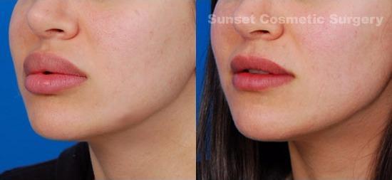 Sunset Cosmetic Surgery image 2