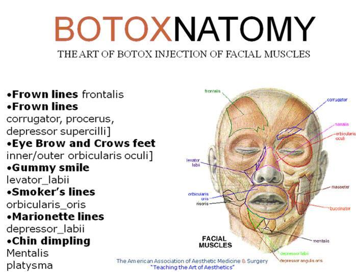 Enchanting Facial Muscle Anatomy For Botox Festooning Anatomy And