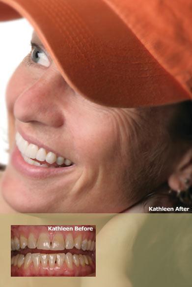 Restoration Dentistry: Van Putten Clifford DDS